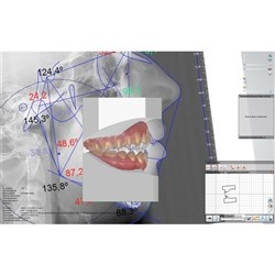 3Shape Orthodontic Software